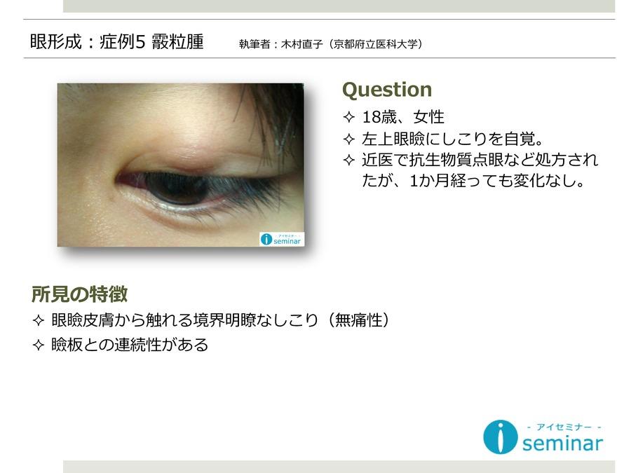 眼形成:症例5