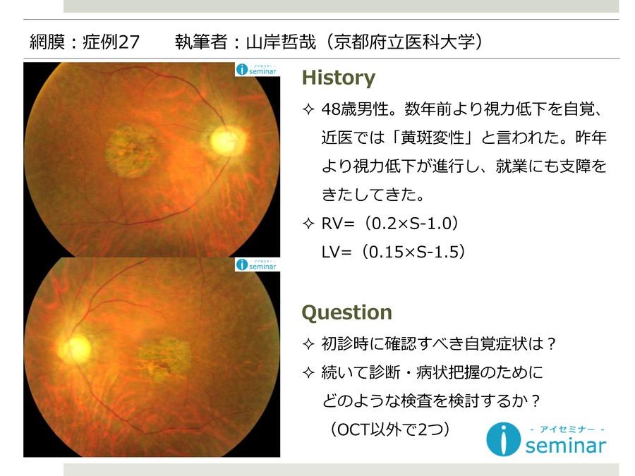 網膜:症例27