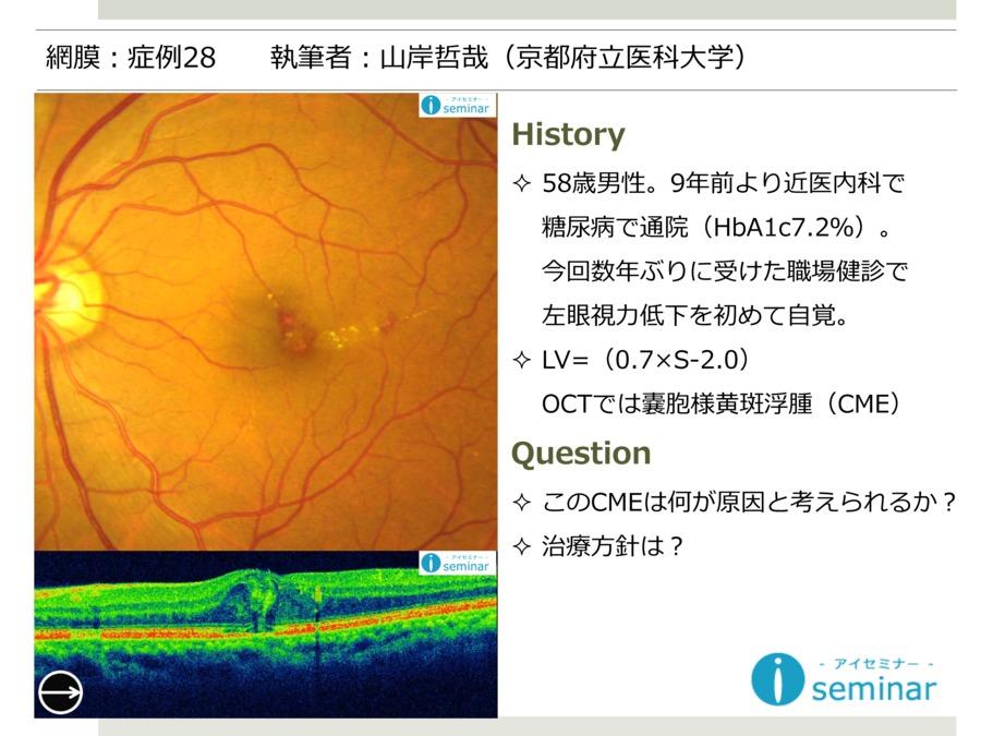 網膜:症例28