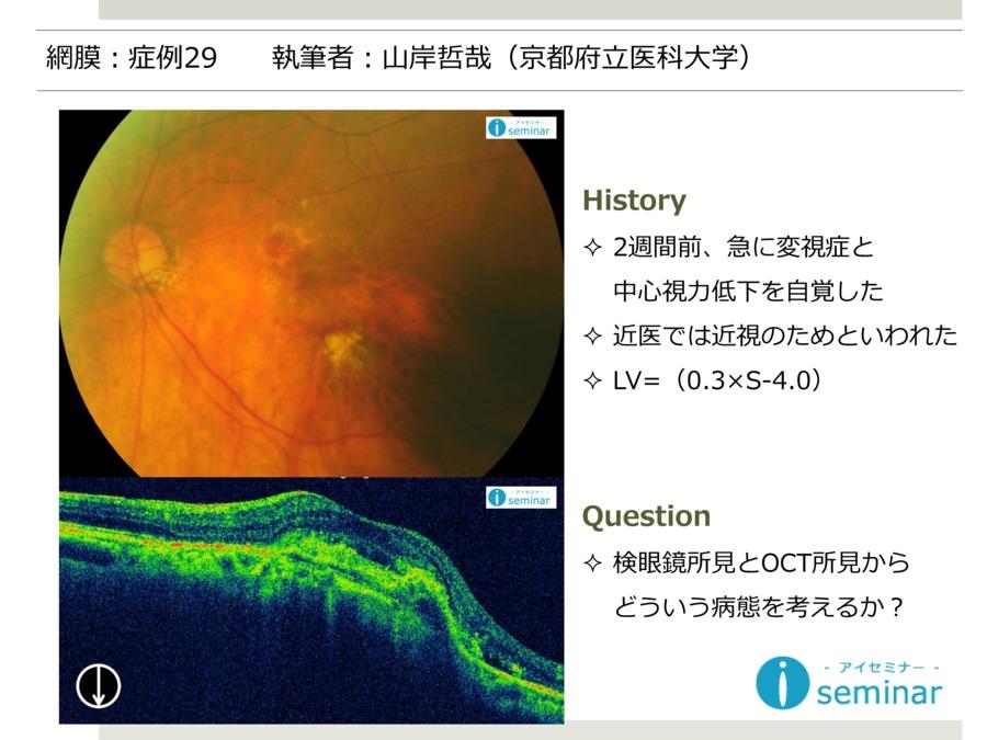 網膜:症例29