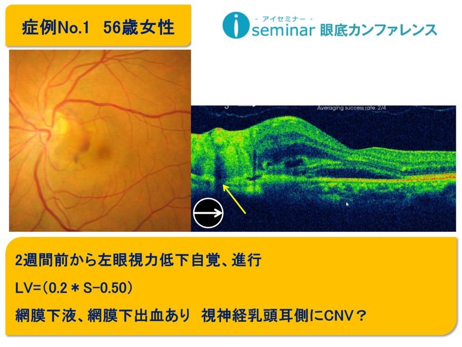 iseminar眼底カンファレンス:Case1
