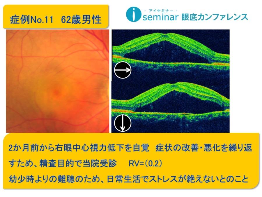 iseminar眼底カンファレンス:Case11