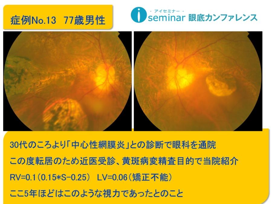 iseminar眼底カンファレンス:Case13