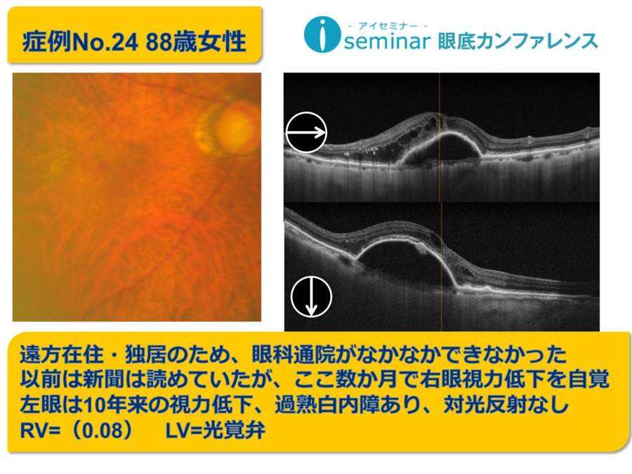 iseminar眼底カンファレンス:Case26