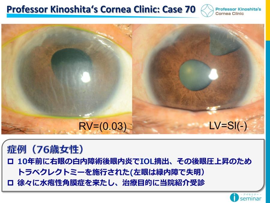 Professor Kinoshita's Cornea Clinic : Case70