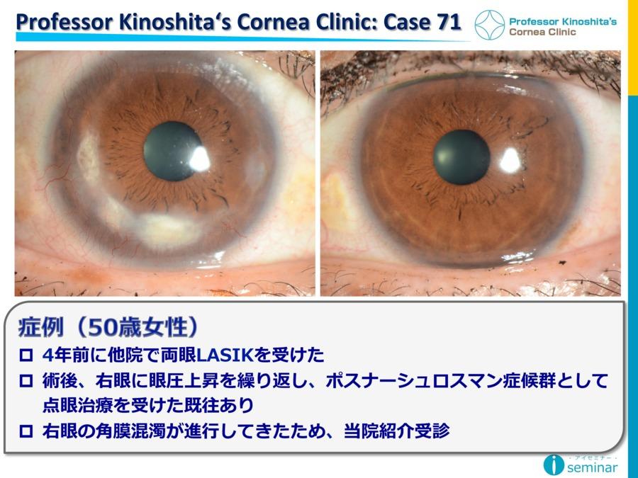 Professor Kinoshita's Cornea Clinic : Case71