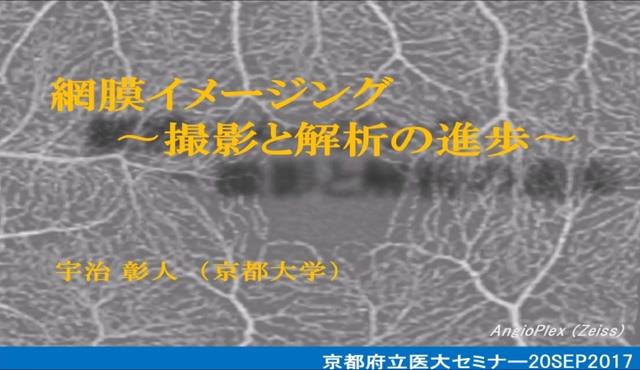 網膜イメージング -撮影と解析の進歩-