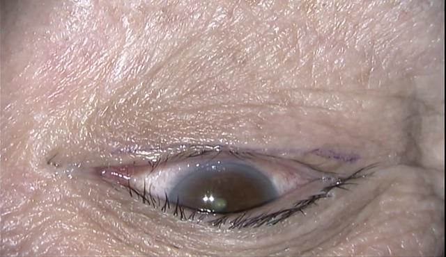 眼瞼内反Jones変法