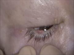 眼瞼悪性腫瘍切除再建 reverse Hughes