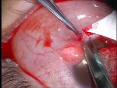 輪部デルモイドに対する表層角膜移植