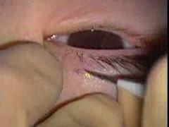 先天性眼瞼下垂:ナイロン糸による吊り上げ術