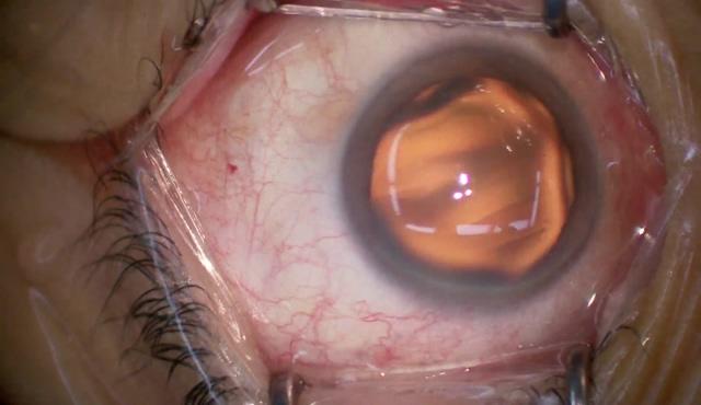 黄斑上膜に対する硝子体手術(ILMと一塊に取れるERM)