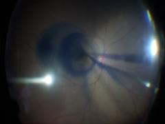 黄斑円孔に対するhemi temporal ILM peeling