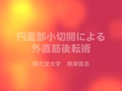 円蓋部小切開による外直筋後転術 [編集済・解説付]
