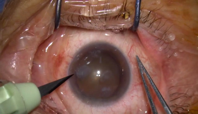 角膜混濁症例への白内障手術(トリパンブルー前嚢染色)