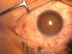 黄斑上膜 Case2
