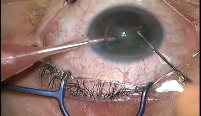 【27G vitrectomy】27GPPV+PEA+IOL(黄斑上膜)