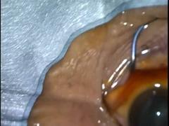 上方アプローチによる耳側切開白内障手術