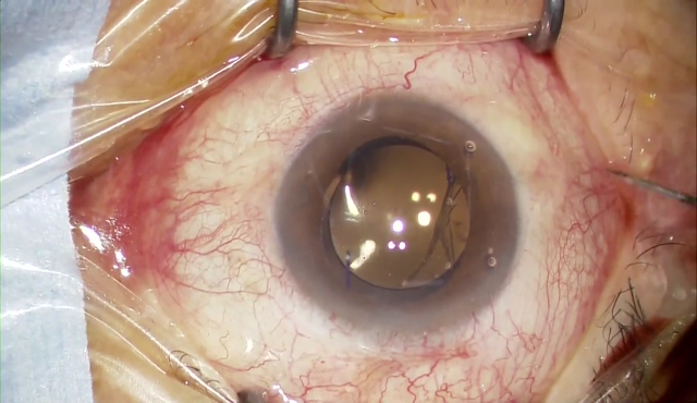 裂孔原性網膜剥離1