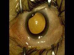 多焦点眼内レンズ+黄斑上膜