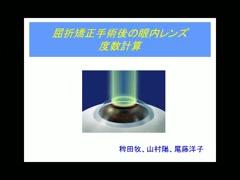 屈折矯正手術後の眼内レンズ 度数計算