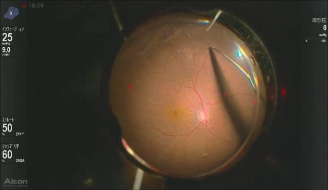 黄斑円孔に対するinverted ILM flap (後編)