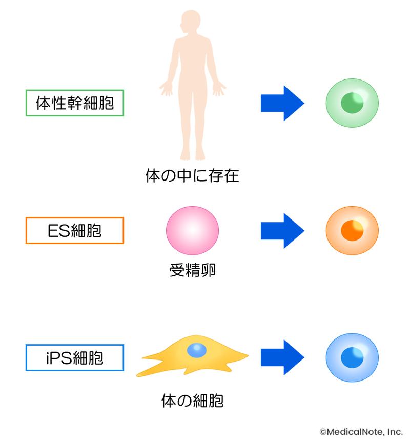 再生医療に用いられる間葉系幹細胞とは?   メディカルノート