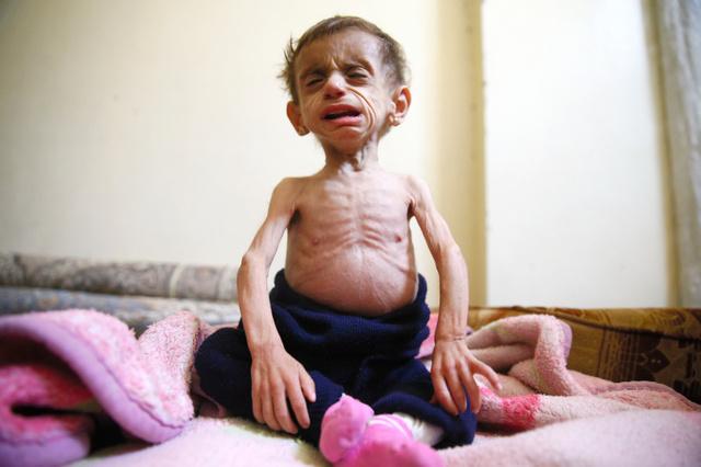栄養失調の子ども1千人超 政権軍...