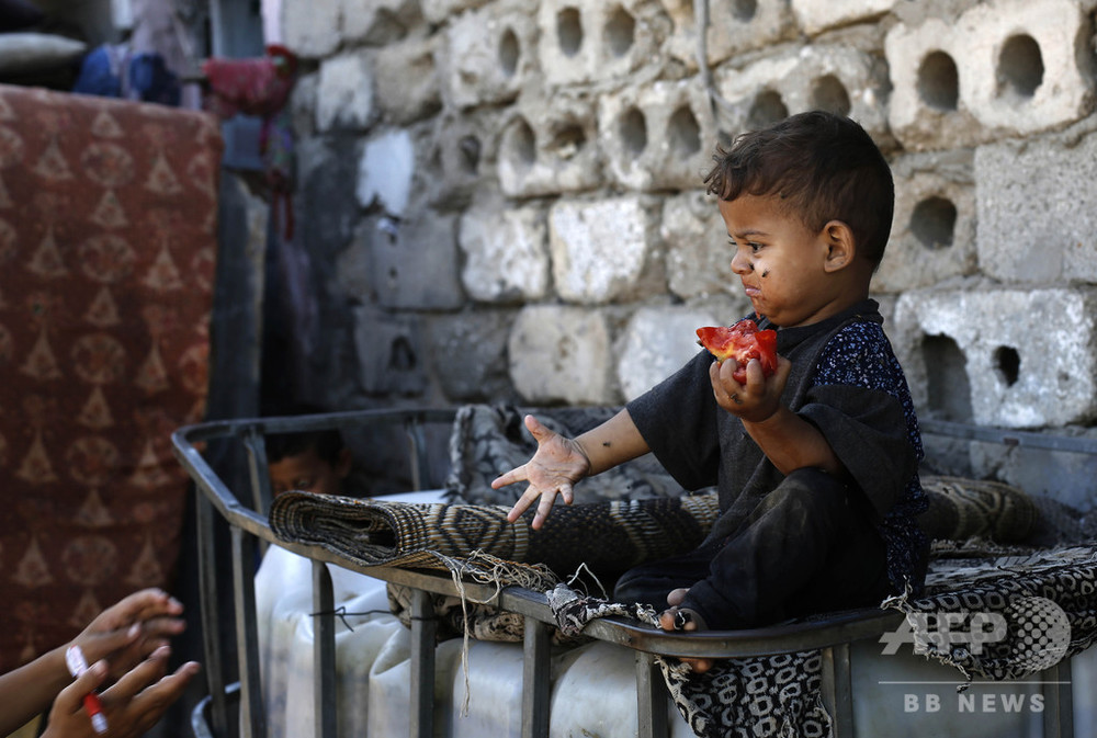 5歳未満の子ども、3人に1人が栄養不良か過体重 ユニセフ 写真1枚 国際ニュース:AFPBB News