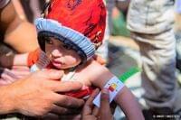 イエメン:5歳未満児の栄養不良が急増【プレスリリース】|公益財団法人日本ユニセフ協会のプレスリリース