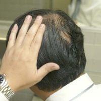 薄毛が気になる…気をつけるべきは「血糖コントロール」 (日刊ゲンダイDIGITAL) - Yahoo!ニュース