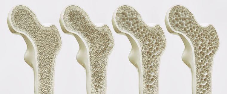 ②骨粗しょう症   骨強度の低下を特徴とし骨折のリスクを増大しやすくなる疾患への対策