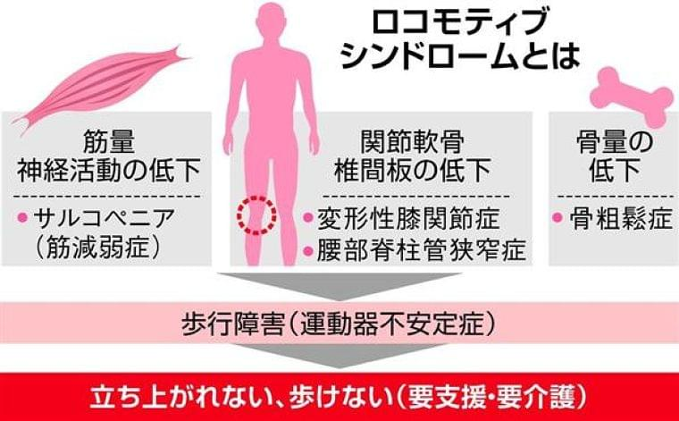 【親を寝たきりにしない9つの処方箋】「ロコモ肥満」と「やせロコモ」対策 どちらも必要な筋肉つけるための運動と栄養を (1/2ページ) - zakzak