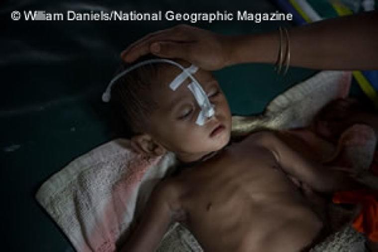 バングラデシュ:難民急増で医療需要が4倍に――MSF、緊急援助を強化 | 活動ニュース | 国境なき医師団日本