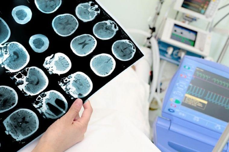 認知症のリスクも高める!怖い「脳内糖尿病」その原因と対策 (1/1)| 介護ポストセブン