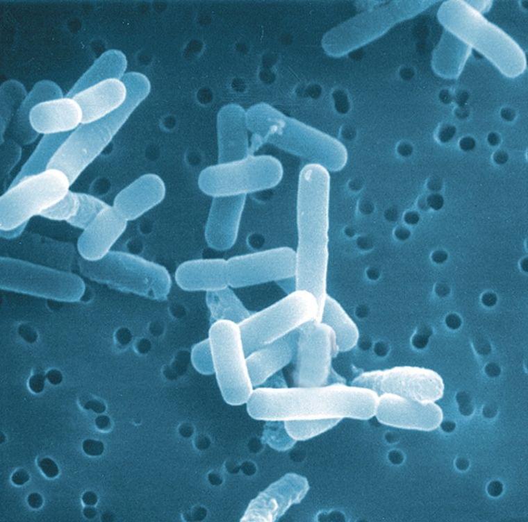 """腸の健康は口から? 欧米で""""バクテリアセラピー""""が話題!"""