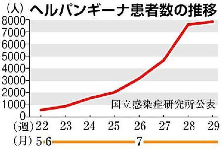 夏風邪「ヘルパンギーナ」流行 山形、新潟、静岡で「警報レベル」 - SankeiBiz(サンケイビズ)