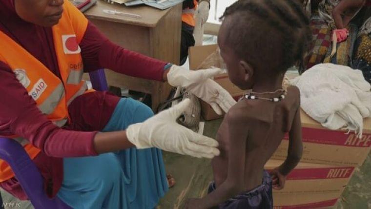 4か国で食糧危機 「子ども140万人が命の危険に」 | NHKニュース