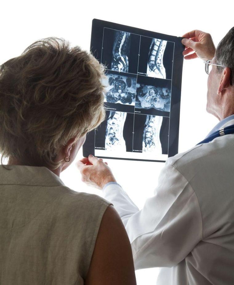 閉経後10年で骨密度は激減!骨貯金に重要なビタミンDは何から摂る? (1/1)| 介護ポストセブン