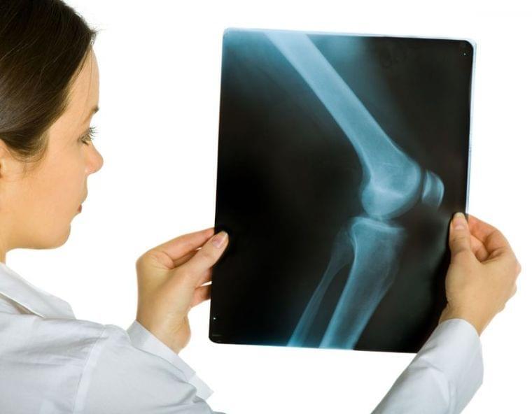 閉経後【骨粗しょう症】は知らぬ間に進行する 自己チェックする方法 (1/1)| 介護ポストセブン