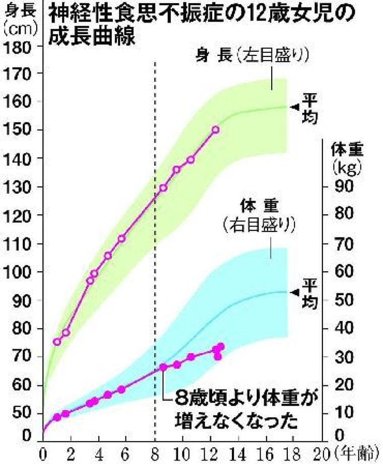 成長曲線に関心持って 子供の「低身長」と「やせ」について聞く  (1/4ページ) - SankeiBiz(サンケイビズ)