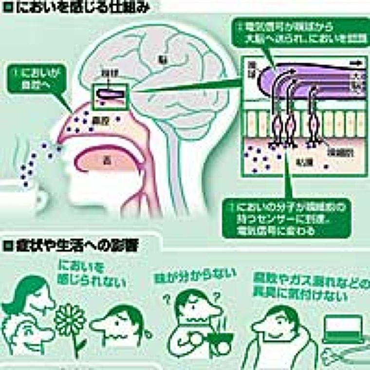 嗅覚障害 生活に影響…服薬・嗅ぐ訓練で改善も : yomiDr. / ヨミドクター(読売新聞)