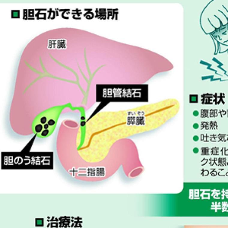 何度も繰り返す胆石症…野菜、果物とって予防 : yomiDr. / ヨミドクター(読売新聞)
