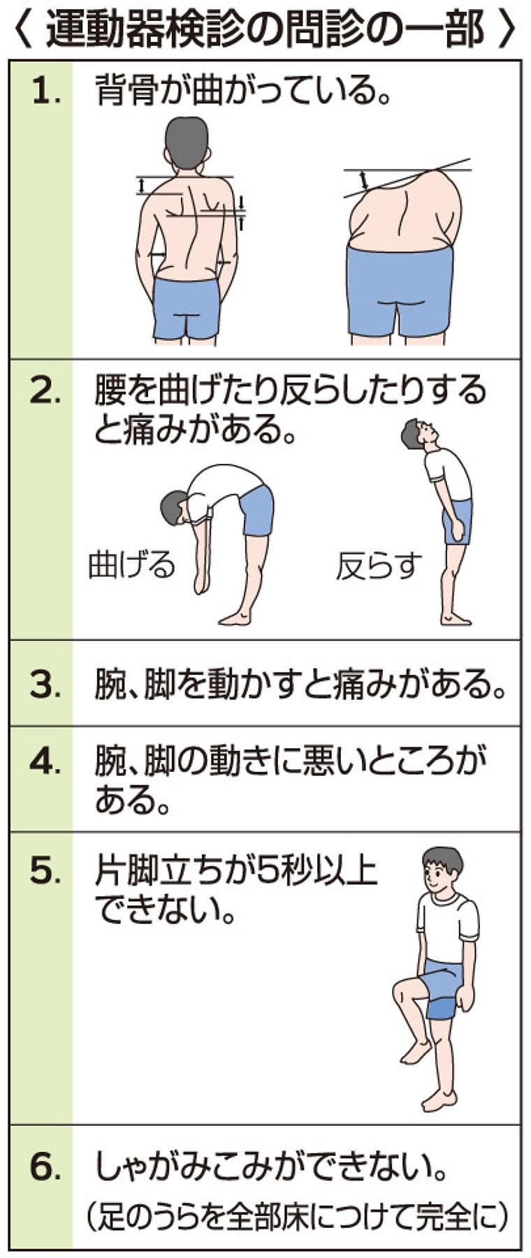 子どもの運動器検診 | 岐阜新聞Web
