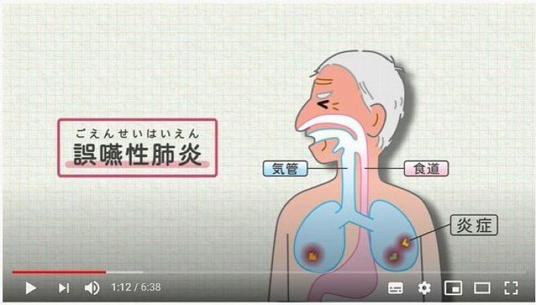 誤嚥性肺炎の予防方法は? 動画で解説、人工呼吸器不足の改善を図る/日清医療食品|食品産業新聞社ニュースWEB