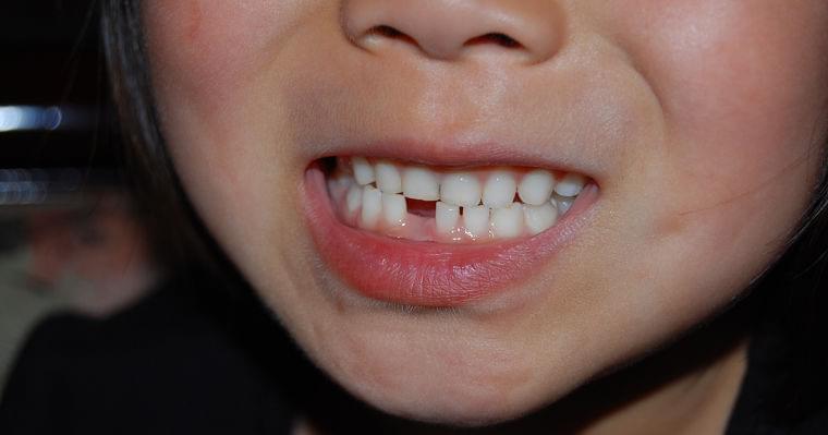 わが子の「乳歯」を捨ててはいけない!?その意外な理由とは   DOL特別レポート   ダイヤモンド・オンライン