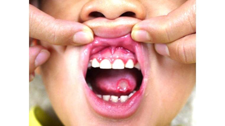 口内炎で食べられず、やせてしまった! 呼吸を変えたら… : yomiDr./ヨミドクター(読売新聞)