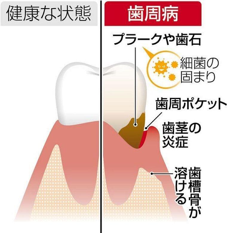 歯周病は「万病のもと」 糖尿病悪化や誤嚥性肺炎に:東京新聞 TOKYO Web