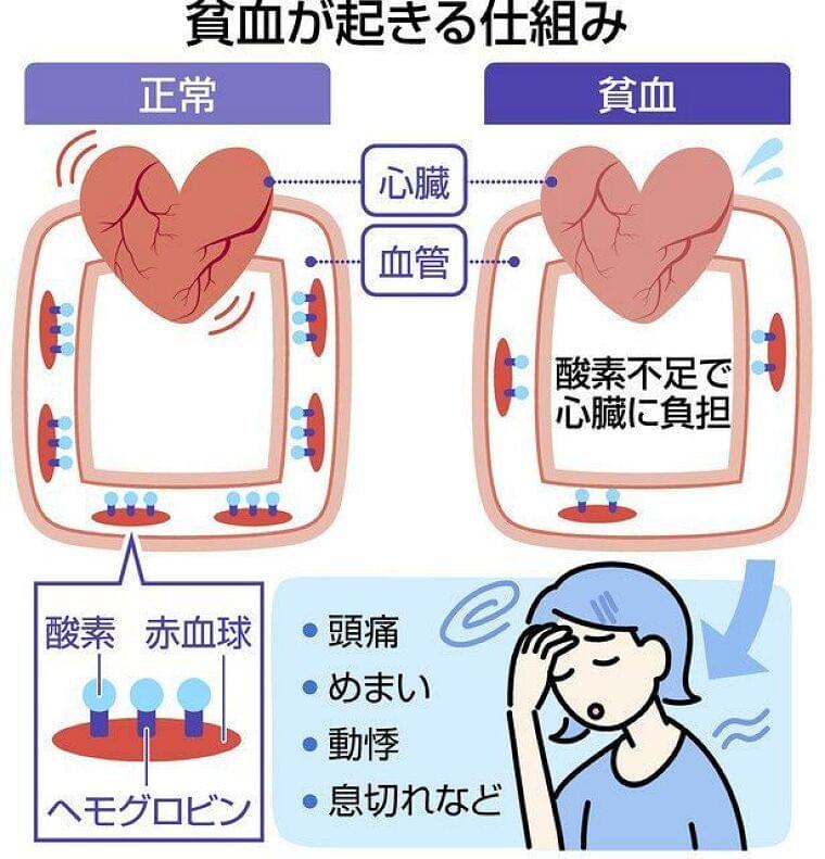 汗と流れて鉄分不足 夏の貧血 スポーツにも注意:東京新聞 TOKYO Web