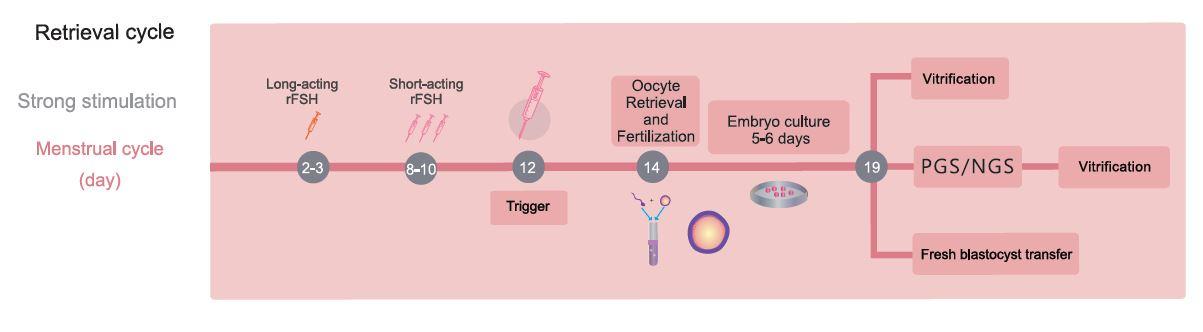 試管嬰兒流程圖